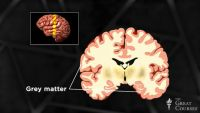Are Bigger Brains Smarter?